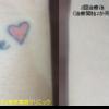 圧倒的症例数 ピコレーザー(エンライトン)でタトゥーを除去をしています。 2回治療後です。2色