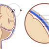 急性硬膜下血腫が三日月型になる理由