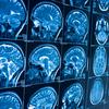 浜松ホトニクスとマイクロソフト 早期発見できる認知症診断AIを開発中