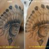 腕のタトゥーが1回のピコレーザーで薄くなりました