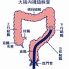 大腸内視鏡検査と潰瘍性大腸炎