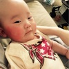 【赤ちゃんのほっぺが赤い&カサカサ!】3つの原因と正しいケア方法とは?ステロイドの副作用は?【乳児湿疹】