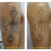肩の黒一色タトゥーが2回の治療でかなり薄くなりました。