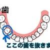 歯列矯正記録〜2本目の抜歯〜