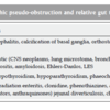 慢性偽性腸閉塞(CIPO)について