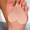 What Is Mortons Neuroma