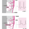 ST上昇型梗塞と非ST上昇型心筋梗塞の違い