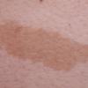 母斑(皮膚のあざ)とレーザー治療について