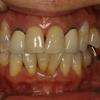 オールセラミックの症例 歯茎が下がってしまった場合の審美歯科治療