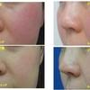 頬の赤みが気になる方に。エクセルV・ジェネシスVで12回治療行いました。