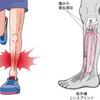 走ると痛い~シンスプリントについて 埼玉県川越市の村上接骨院