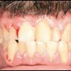 症例:BMJ 40代男性 歯肉が腫れてます