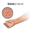 蕁麻疹・血管性浮腫について詳しく解説します② 〜検査と治療について〜
