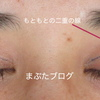 本当に腫れないミニ切開眼瞼下垂手術 〜20代女性 デザインと経過の詳細〜