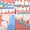 【今さら】歯間ブラシの正しい使い方【再考】