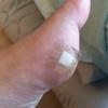 足が痛い!!足に注射を刺しました。。。泣。