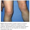 EBウイルスが起こす皮膚症状(前半)