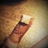 生爪剥がれた