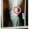 抜釘と腸脛靭帯切除術