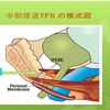 子宮脱や膀胱瘤の手術の後に尿が漏れたらLUNAに来てください。(改訂版)