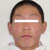 アトピー性皮膚炎の改善記録②