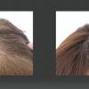 抜け毛・薄毛・細毛が始まった40代女性の未来への頭皮ケア