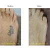圧倒的症例数!ピコレーザー(エンライトン)でタトゥーを消す。5回治療後です。長期経過。