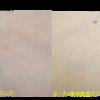 圧倒的症例数!ピコレーザー(エンライトン)でタトゥー除去をしています。 4回治療後です。黒