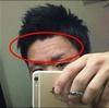 【写真有】前髪を上げてオデコを出すようにしてから、オデコのニキビが激減した話