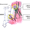 腰痛の隠れた原因-殿皮神経障害-