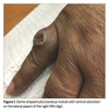 症例:JAMA 59歳女性 指の潰瘍を伴う結節