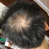 【AGA育毛35日目(生え際、頭頂部の画像)】顔に赤い湿疹、身体が痒い(20181004時点)