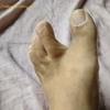足の指がつる癖がついている?こむら返りがきたらこの治し方です!