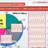 ECG-367:VT診断のためのTips その2= 心電図検定試験:傾向と対策 Q.014=