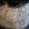 後頭部(採取した部分)の状態