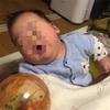 乳児湿疹? 長男3ヶ月
