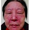 症例:BMJ 69歳女性 顔面紅斑