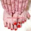 ハンド&フット同日施術でのキャンペーンメニューご利用にて♡もち肌に変身&真っ赤なペディ☆