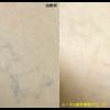黒の自彫りタトゥー。1回治療後