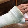 骨折から1週間後の診断結果…「暗転」のち「光明」