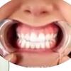 歯列矯正6日目・今、痛いのは3つの痛み。。。