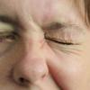 睫毛徴候の見方とその意義