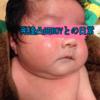 【アトピー】グリメサゾン軟膏との出逢い!乾燥性アトピー赤ちゃんのスキンケア【ステロイド】
