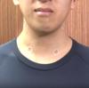 「箱根駅伝(マラソン)選手が貼っているテープ」ファイテン(Phiten)パワーテープ(シール)の効果や貼り方・種類についてまとめてみた