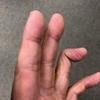 左手の薬指、マレットフィンガーになる