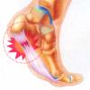 右足踵に激痛!足底筋膜炎の発症と治療について