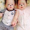 「胎児機能不全」だった双子の予後⑤〜NICUとGCU〜