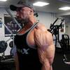 肩の不安定性に対するウェイトトレーニング(肩関節外転外旋を行う「ハイファイブ」の姿勢は肩関節包前部に負荷を与えるために、肩前部の過弛緩(過剰な動き)を引き起こし、不安定性をもたらす)