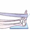 Does A Inferior Calcaneal Spur Hurt?
