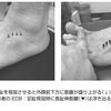 糖尿病と短趾伸筋